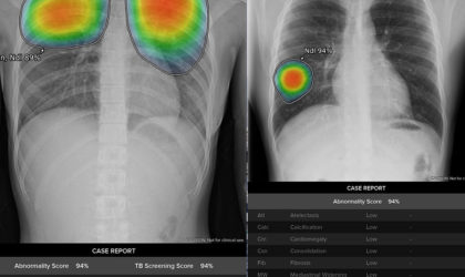 GE launches 8 AI algorithms for rapid testing of 1.5B global chest x-ray scans