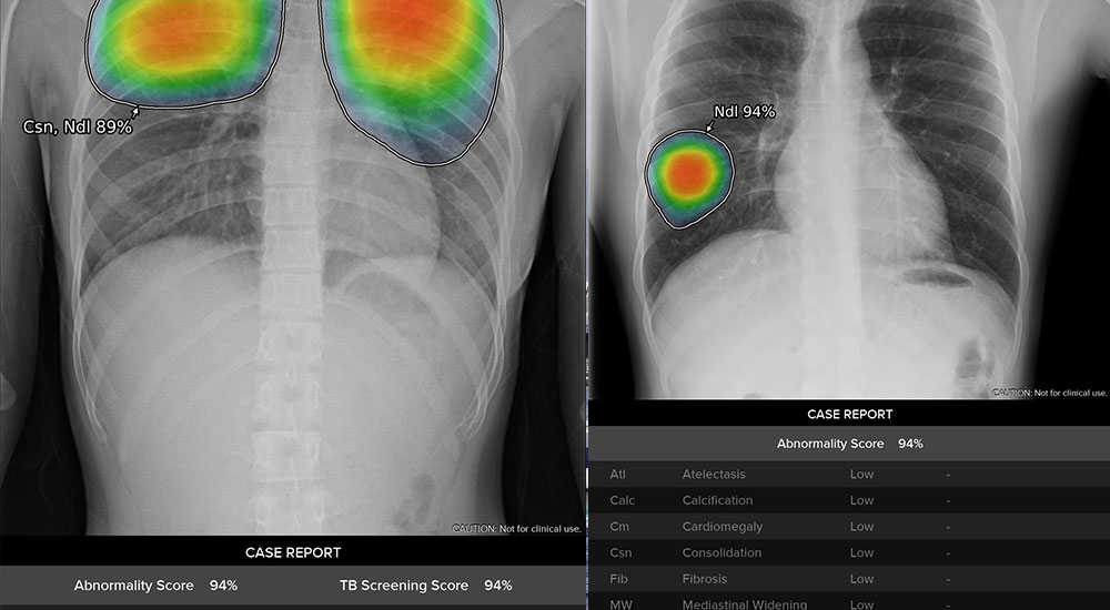 GE Healthcare has introduced its Thoracic Care Suite.